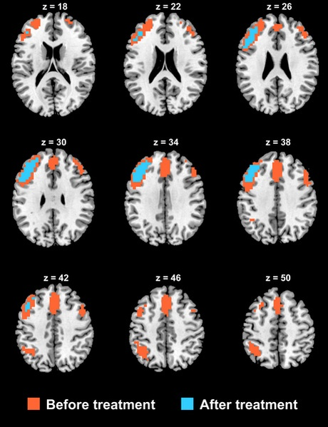 Functional connectivity in severely depressed patients before (displayed in orange) and after ECT treatment (displayed in cyan), showing a substantial reduction in the brain's functional connectivity after treatment.