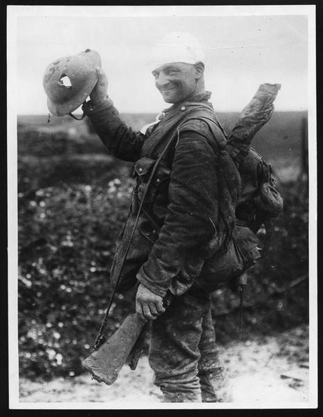 Shows a soldier shot in the head who he was saved by his helmet. This photo is courtesy of the National Library of Scotland.