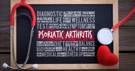 A new study will look at the impact of new drugs on people with psoriatic arthritis