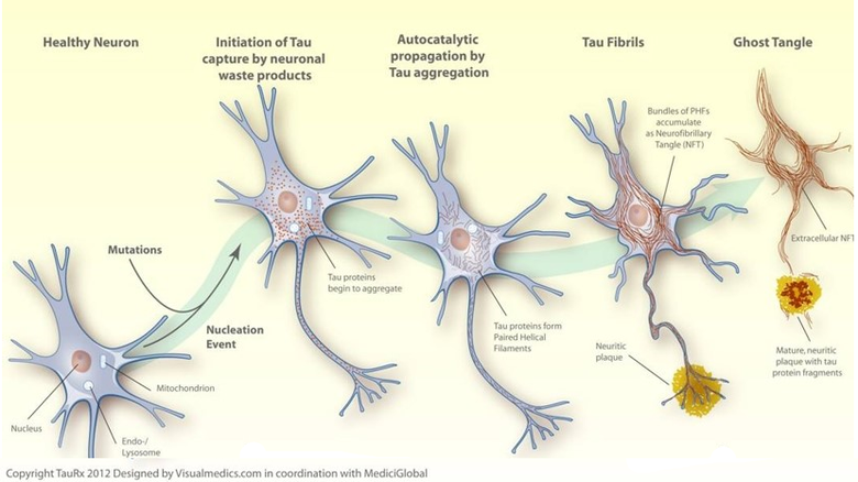 Diagrammatic representation of tau protein aggregation inside neuronal cells leading to cellular dysfunction and cell death